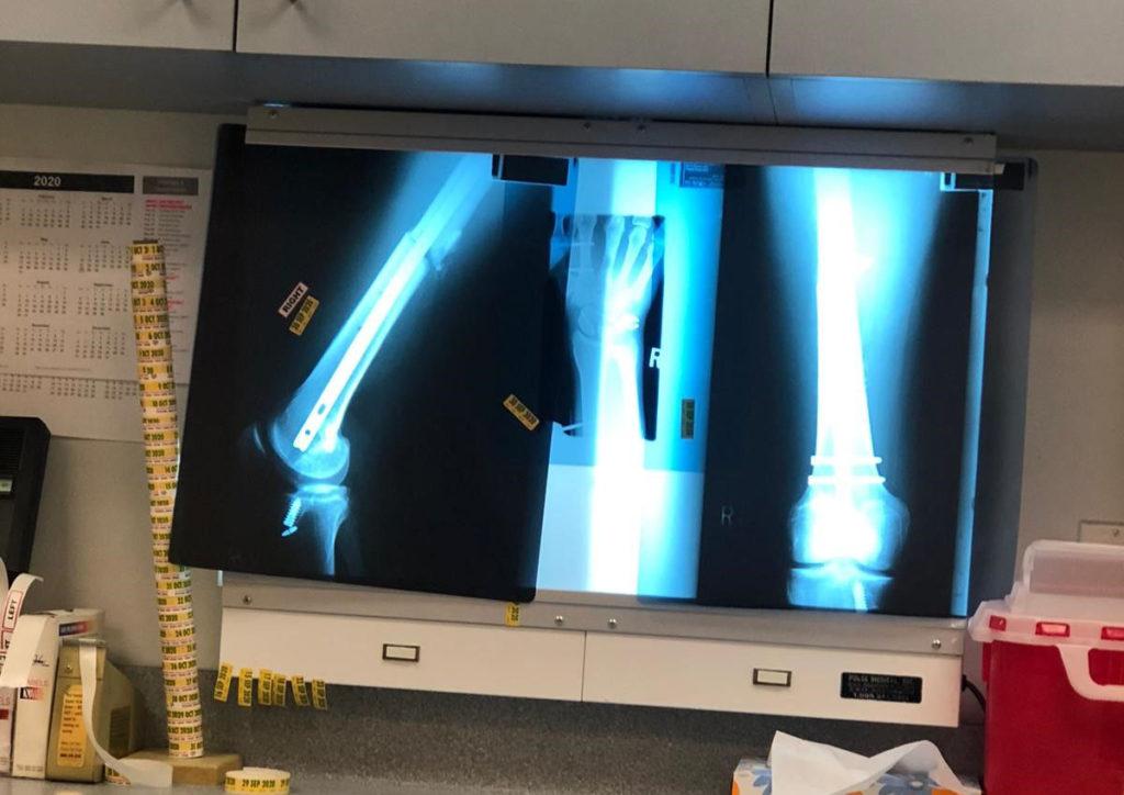 Bradley Ward's post-surgery X-rays. Photo courtesy Bradley Ward Racing.