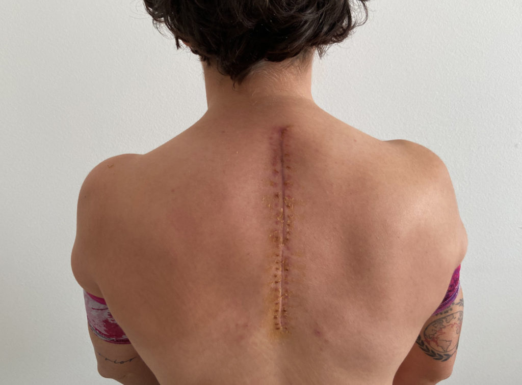 Ana Carrasco's back, prior to her recent surgery. Photo courtesy Kawasaki.