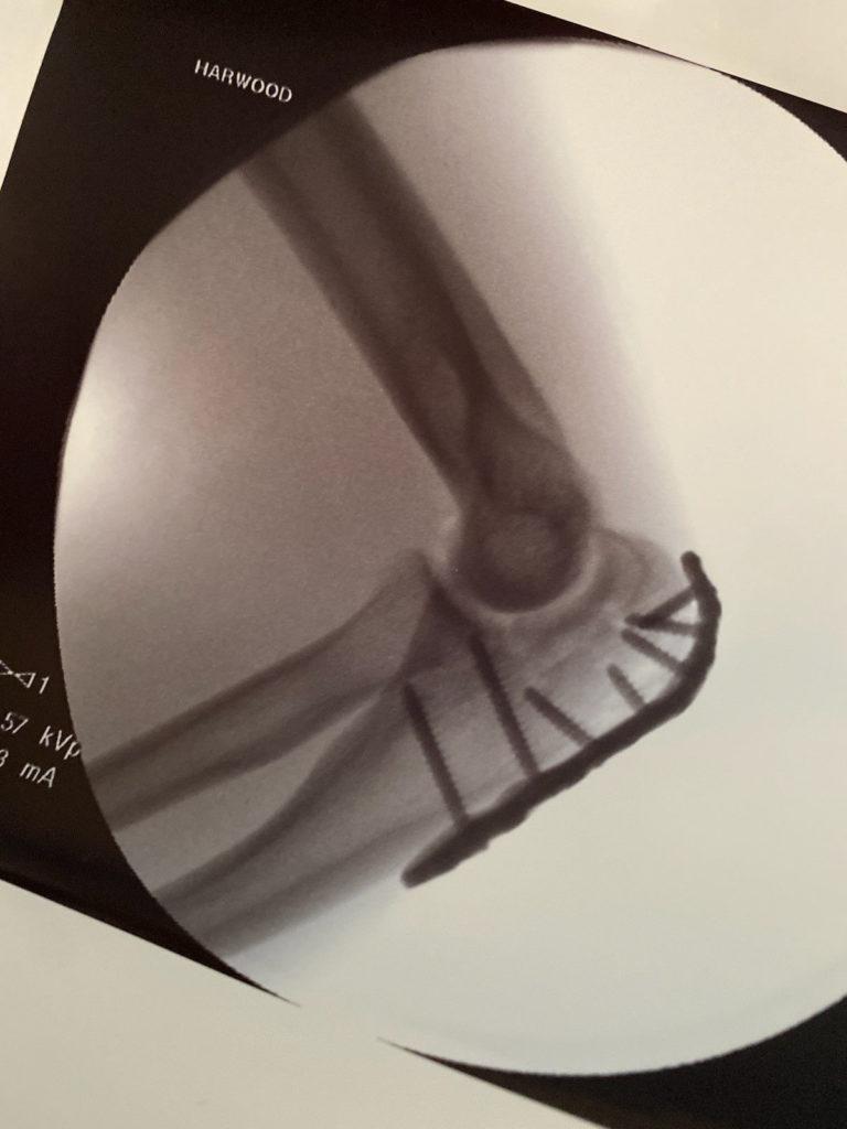 Kyle Wyman's left elbow post-surgery. Photo courtesy Kyle Wyman Racing.