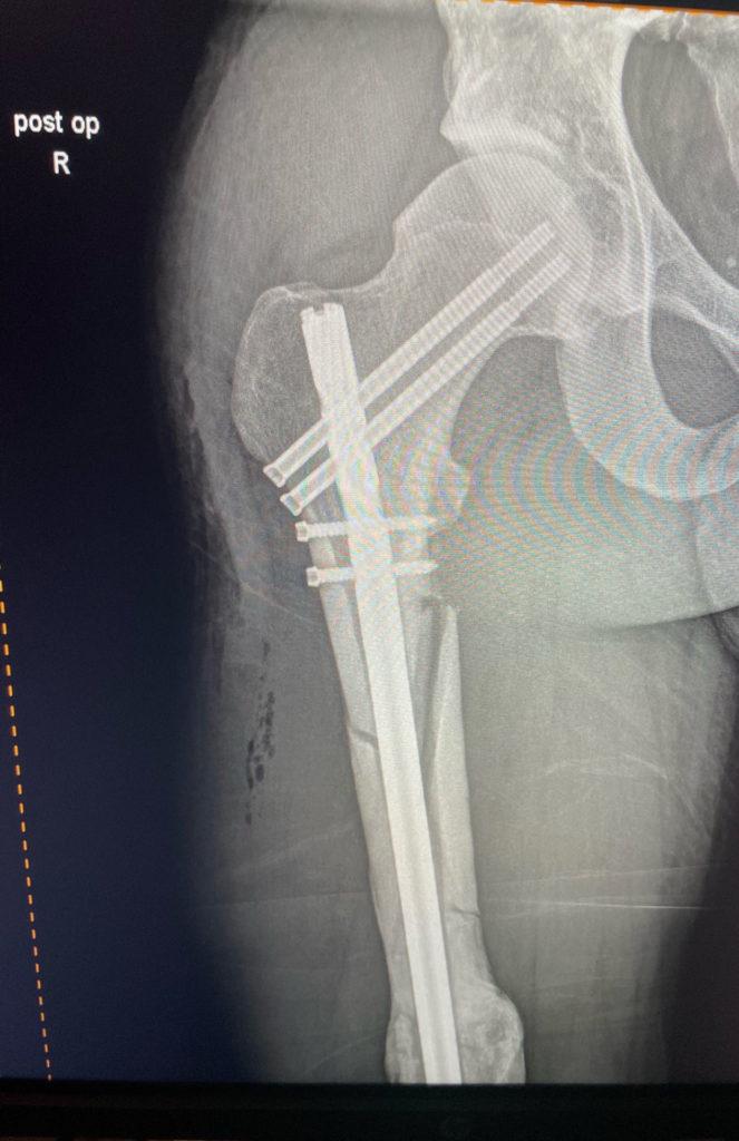 The upper part of Bradley Ward's broken right femur. Image courtesy Bradley Ward Racing.